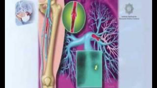 Pdf tromboembolia definicion de pulmonar
