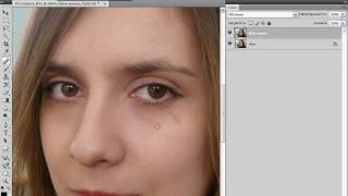Устранение дефектов кожи в Photoshop (20/40)