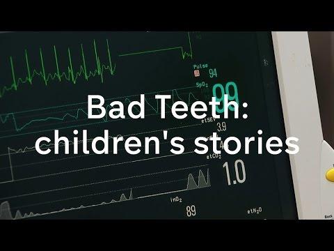 Bad Teeth: children's stories