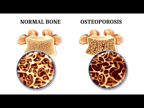 12 Foods That Fight Osteoporosis and Promote Strong Bones