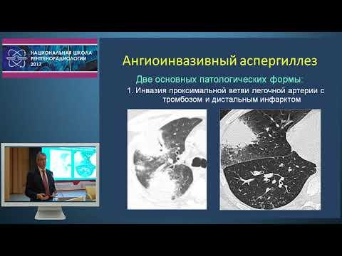 И.Е. Тюрин - Рентгенодиагностика нетуберкулезных инфекционных осложнений при иммунодефицитах