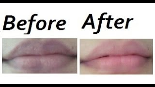 How to Make your Lips Pink and Soft Naturally Thumbnail