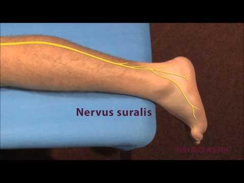 Невропатия малоберцового нерва - причины, симптомы