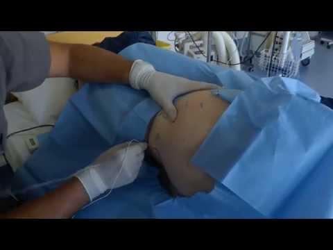Lumbar  and lumbosacral plexus  block-251 General Air Force Hospital