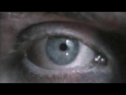 Patrick (1978) - Trailer