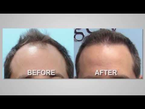 Restoring Your Hairline with Dr. Michael Vories of Carolina Hair Surgery | Charlotte, NC