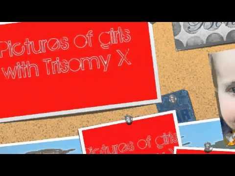 Trisomy X Project