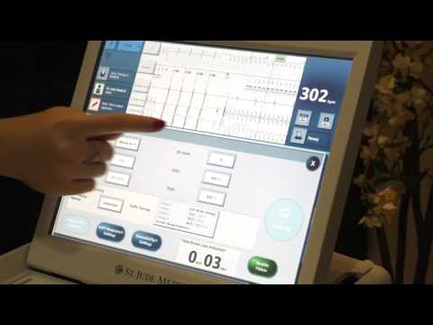 OLC - ICD programming Part 2