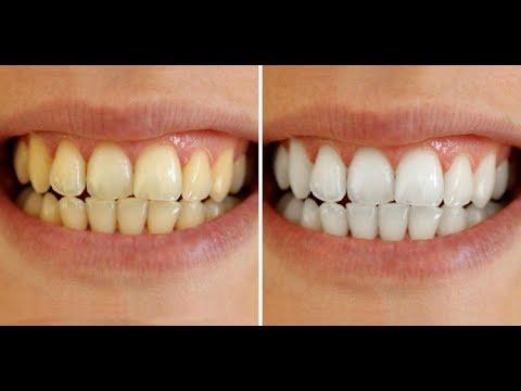 Tips Cara Memutihkan Gigi Aman Menggunakan Bahan Alami Youtube