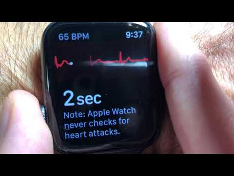 How to use Apple's ECG App on the Apple Watch and Phone