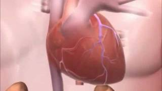 Meducation - Hypertension.wmv