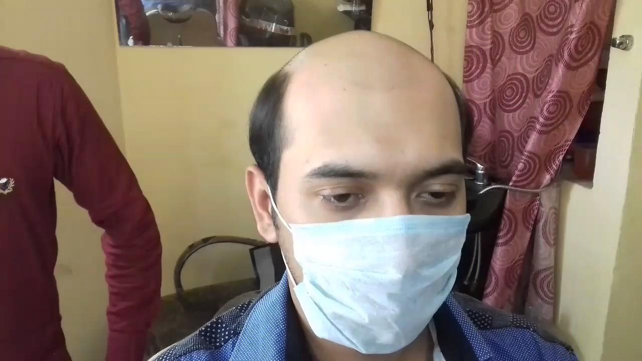 Whatsapp 9996900795 Hair Bonding In Delhi Hair Bonding Price 5500