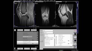 Knee MRI positioning
