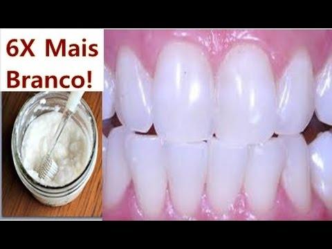Dentes Brancos Na Hora Tirar Tartaro E Acabar Com Gengivite 100