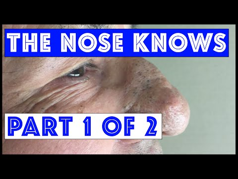 """The Nose Knows: Part I """"Mr. Wilson's"""" Blackhead Extractions"""