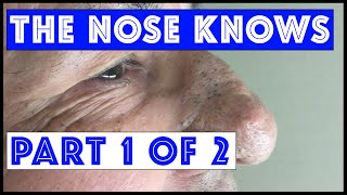 "The Nose Knows: Part I ""Mr. Wilson's"" Blackhead Extractions"