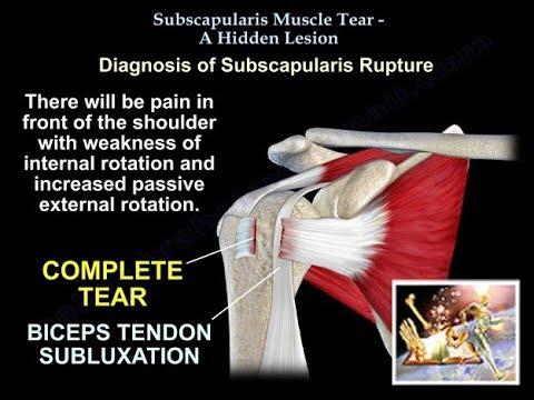 varicoză biceps tratament