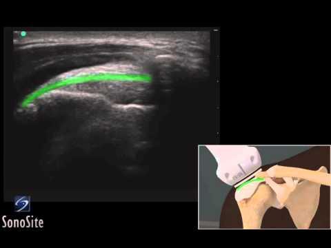 Guide 3D: Esame ecografico del conflitto acromiale della spalla - Sistema a ultrasuoni SonoSite