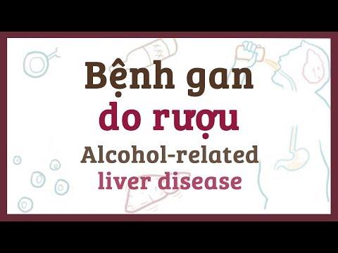 Bệnh gan do rượu - nguyên nhân, triệu chứng & bệnh lý
