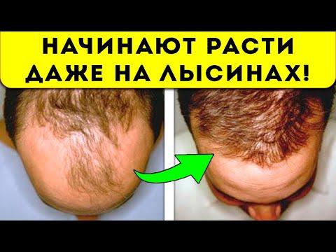 Вопрос: Как сделать маску для волос с семенами пажитника?