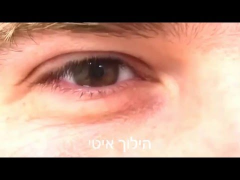 עין קופצת, eyelid myokymia