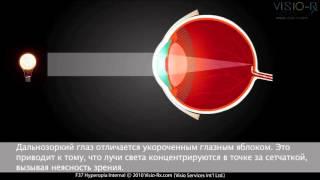 гиперметропия (дальнозоркость): очки и линзы по рецепту