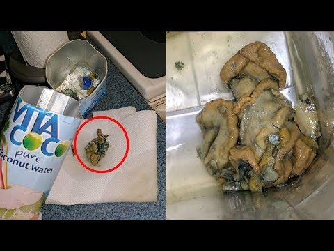 Thumbnail: 5 Grossest Things People Found In Their Food