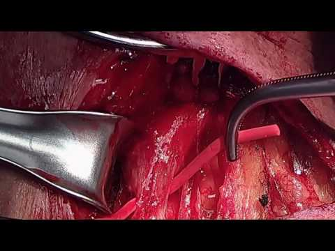 Left Carotid to Subclavian Artery Bypass