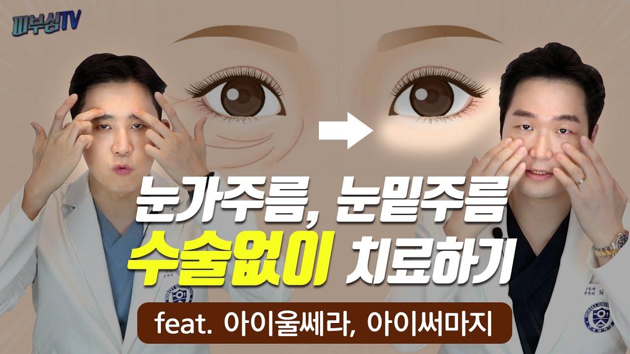 눈가 주름, 눈밑 주름을 수술없이 치료하기(feat. 아이울쎄라, 아이써마지)  [피부과전문의 피부심]
