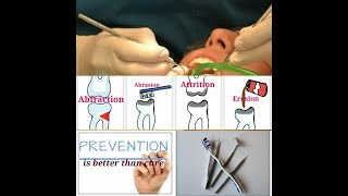 Preventive Measures for Tooth Wear// Attrition, Abrasion, Abfraction, Erosion