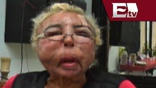Hombre se inyecta aceite para bebé y termina con su cara deformada / Titulares Vianey Esquinca