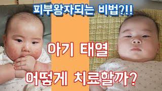 아기태열 예방 및 관리하는 법