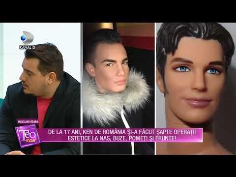 Teo Show (13.02.2018) - Ken de Romania are 17 operatii estetice! Partea III