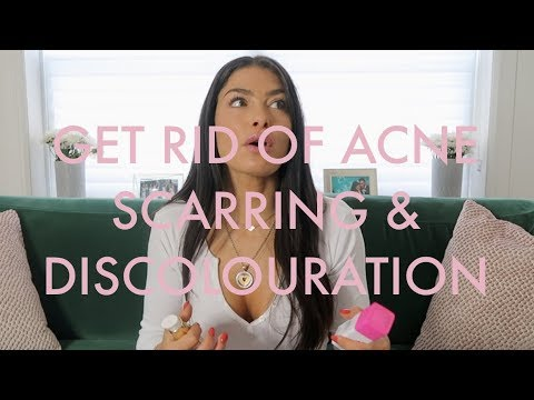 MY TIPS & TRICKS TO GET RID OF ACNE SCARRING, DISCOLORATION & HYPER PIGMENTATION!
