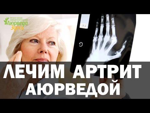Артрит - лечение болезни. Симптомы и профилактика