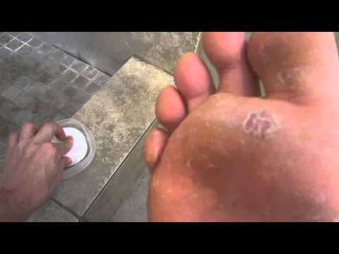 Best Athletes Foot Cure EVER Day 9 100% CURED