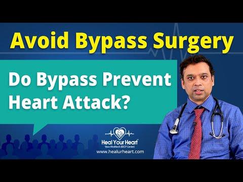 do bypass prevent heart attack