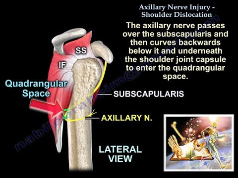 Axillary Nerve Injury Shoulder Dislocation - Everything You Need To Know -  Dr  Nabil Ebraheim