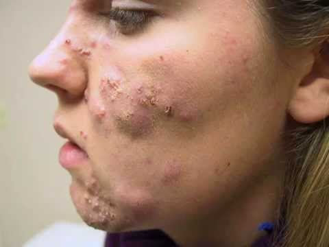 Image result for acne no more review