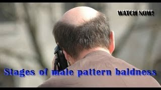 Stages of male pattern baldness