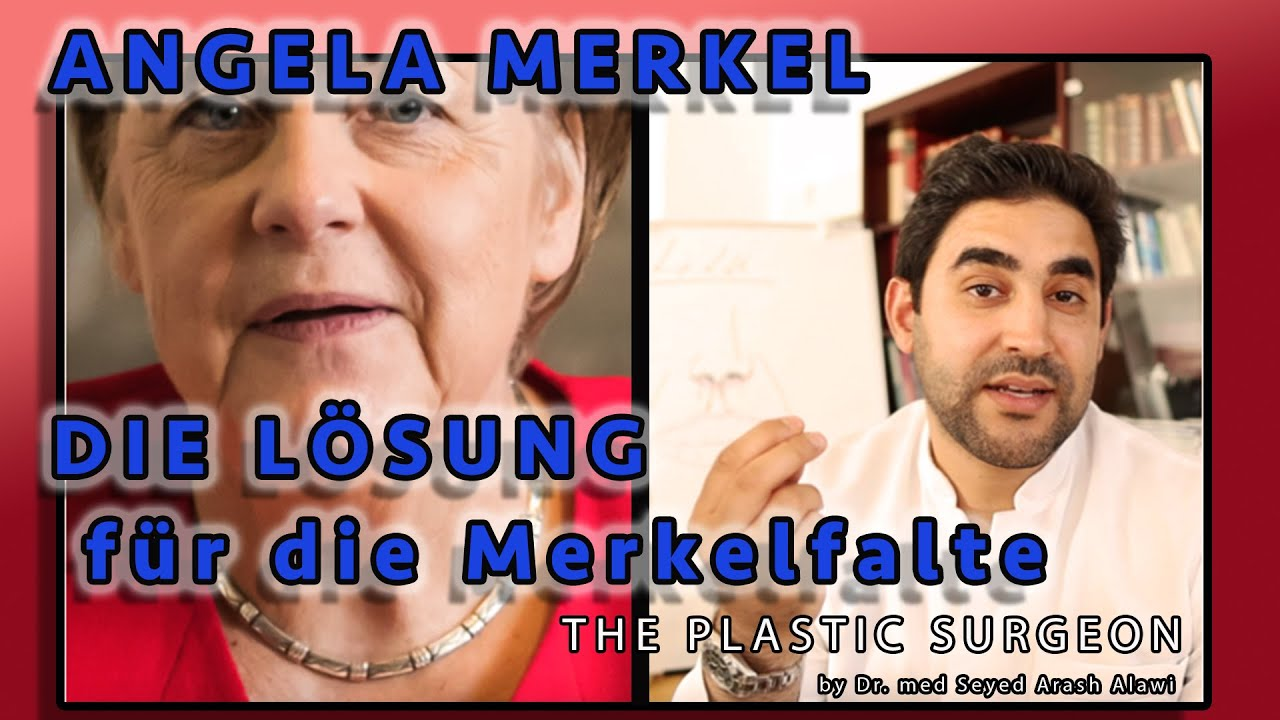 Angela Merkel: Merkelfalte Mundwinkel-Lifting | Grin lift
