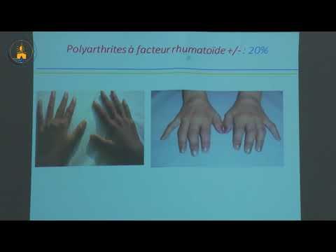 Les Arthrites Juvéniles Idiopathiques 5