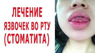 видео Как лечить язвы во рту за 10 руб