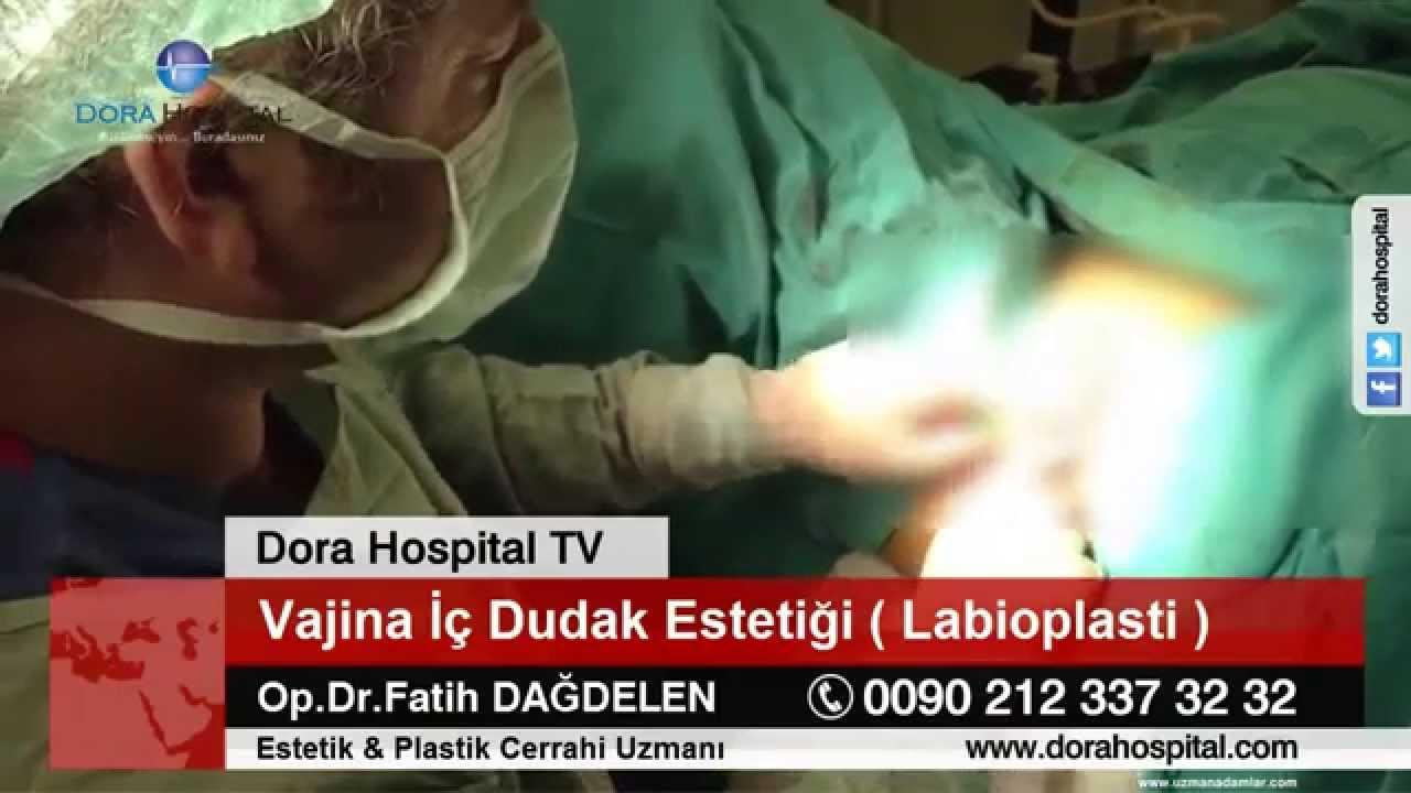 Vajina Iç Dudak Estetiği Labioplasti 18 Youtube