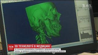 Технології 3D-друку у медицині. Як на спеціальних принтерах виготовляють частини обличчя
