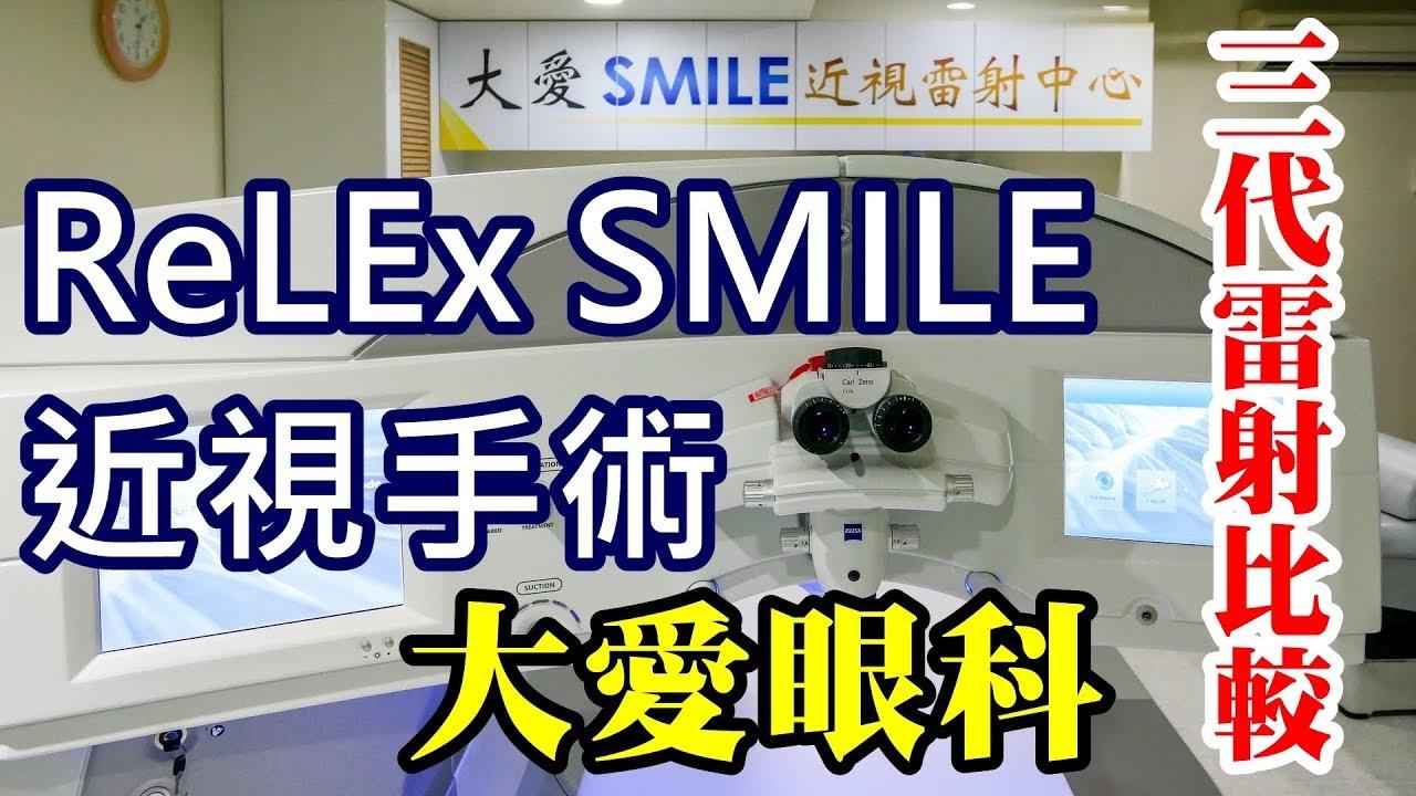 大愛眼科   三代近視雷射手術比較   ReLEx SMILE 手術實錄 - YouTube