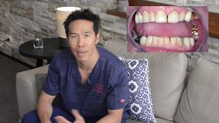 Teeth transformation - What is a full mouth Reconstruction?
