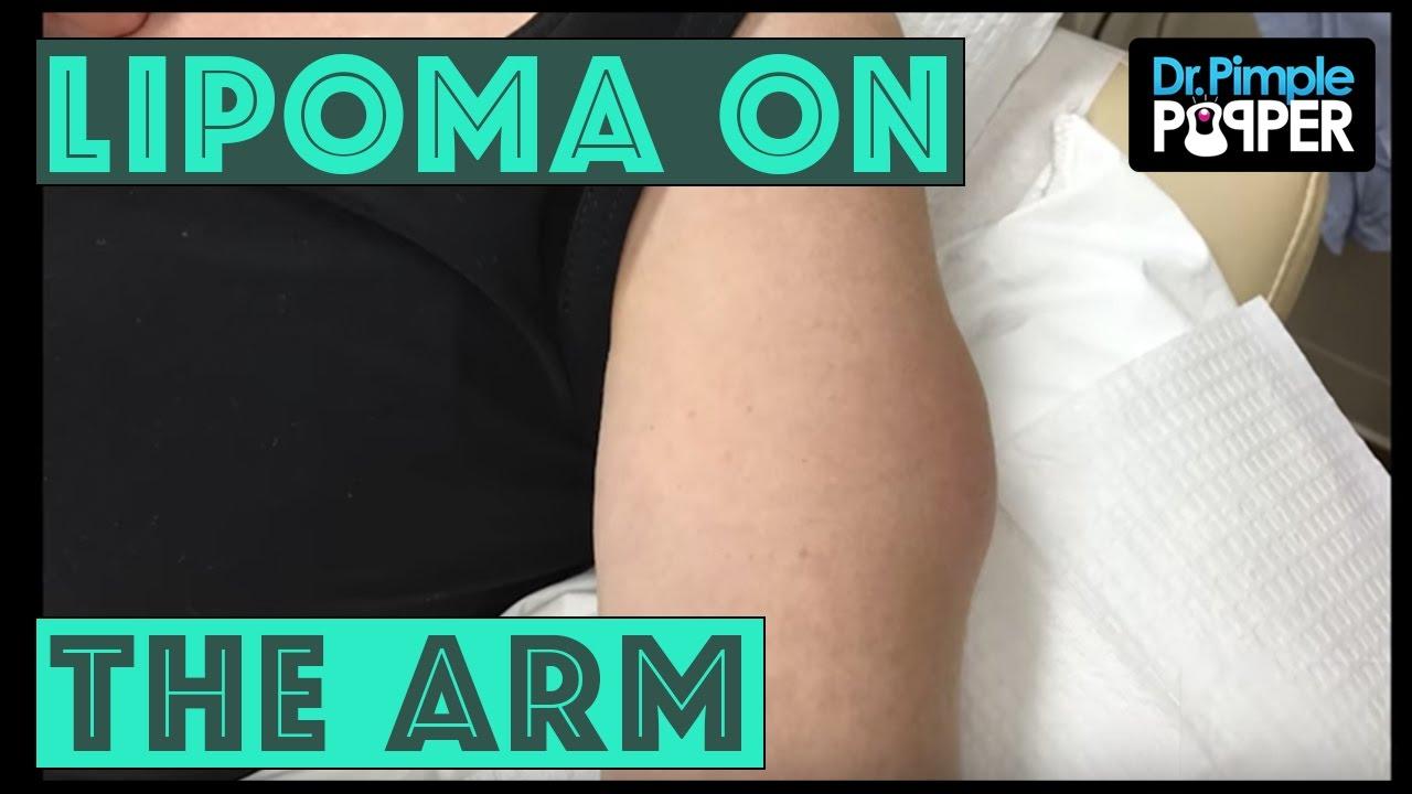A Lipoma International On The Arm