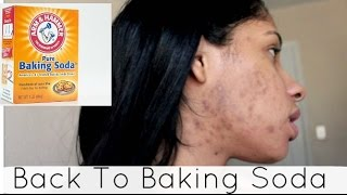 Back To Baking Soda 2 WEEKS Challenge - BEFORE