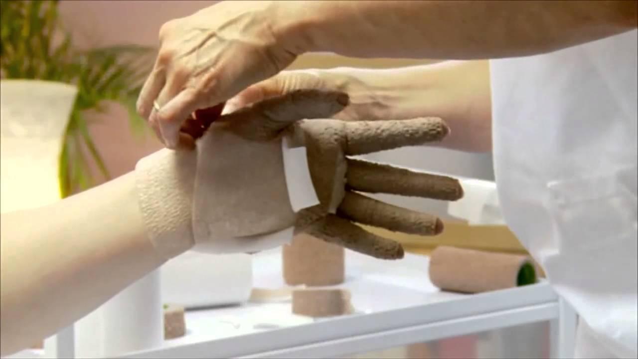 kompressionsverband mit 3m coban 2 an hand und arm